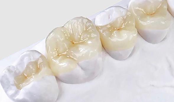 Виниры на зубы ульяновск